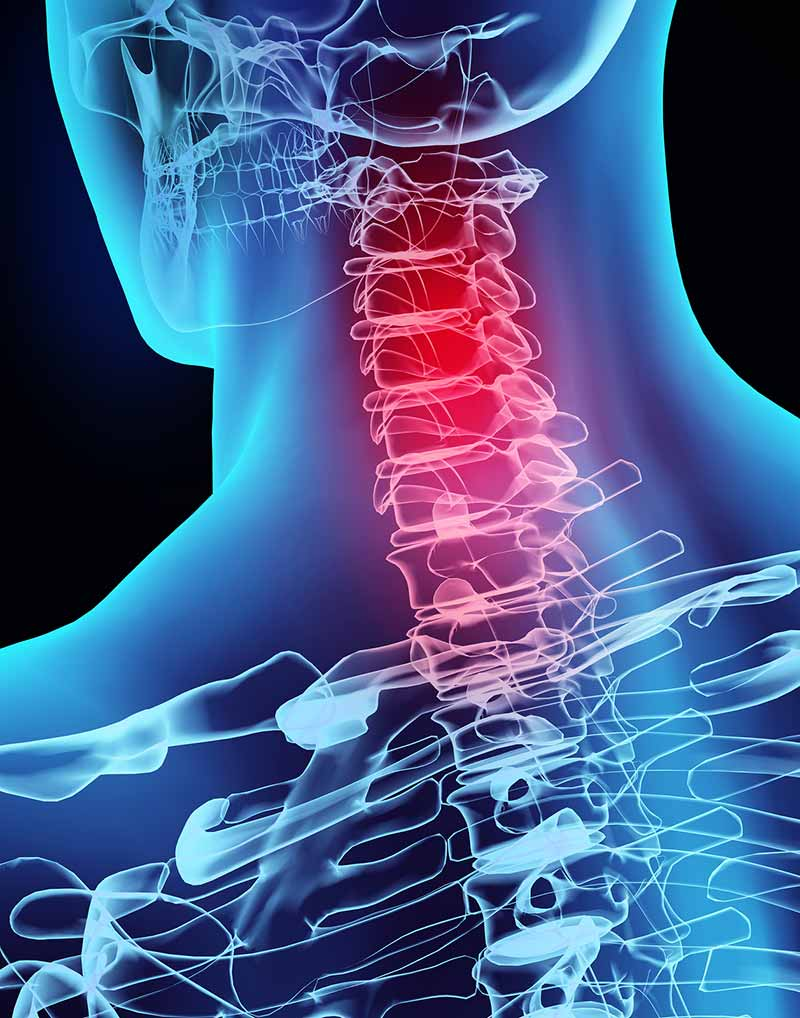 3D image x-ray of neck vertebrae in Scottsdale AZ