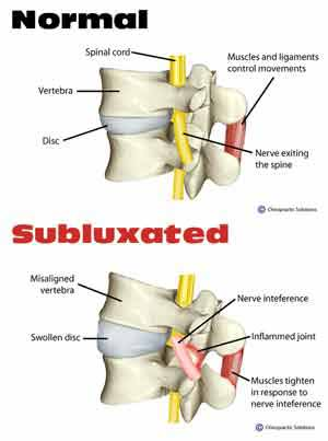 Subluxation Explained Infographic