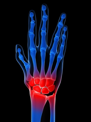 Arthritis in the Hand - Rheumatoid