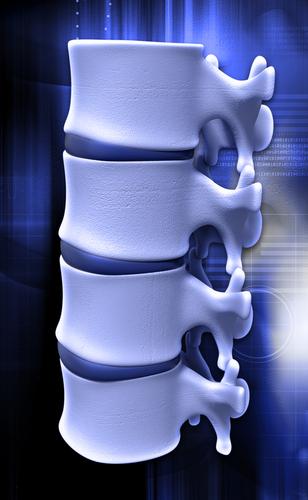 Degenerative Disc Disease Spine segment