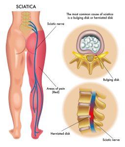 Lower back Sciatica affected area
