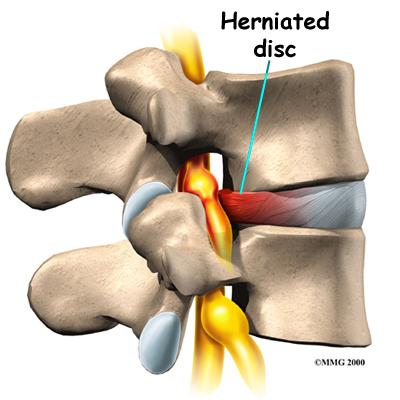 Herniated Lumbar Disc on Spine