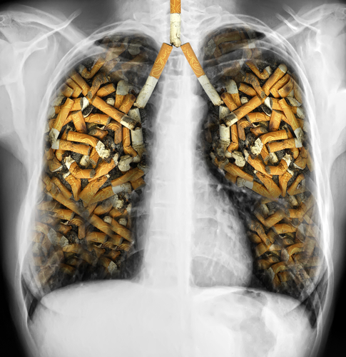 Lungs filled with cigarettes