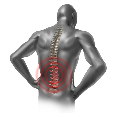 Diagram of Man with Lower Back Problems