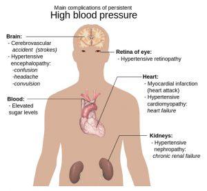Hypertension (High Blood Pressure) Health Complications