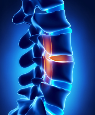 Spinal Disc Pain