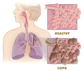 Healthy and COPD Lung Diagram