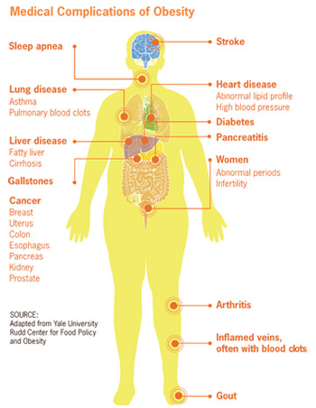 Obesity Medical Complications Diagram