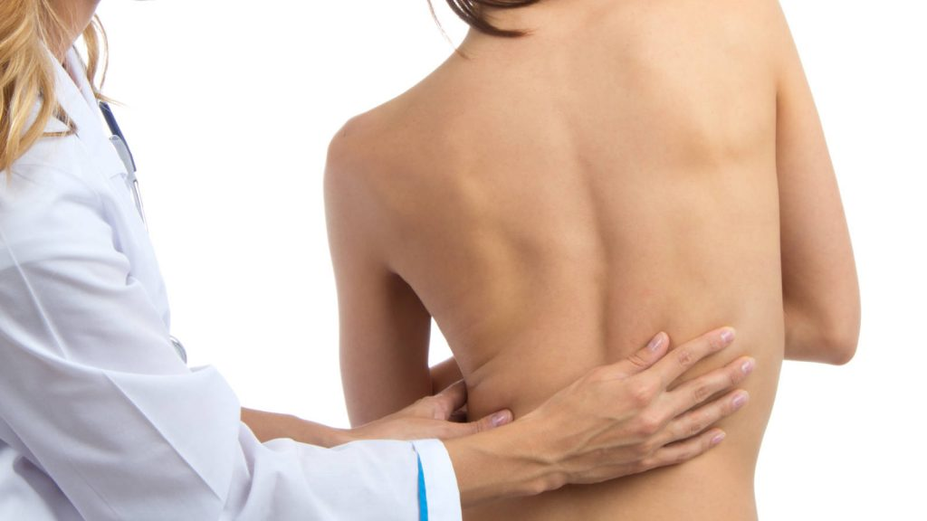 Young woman with scoliosis being treated